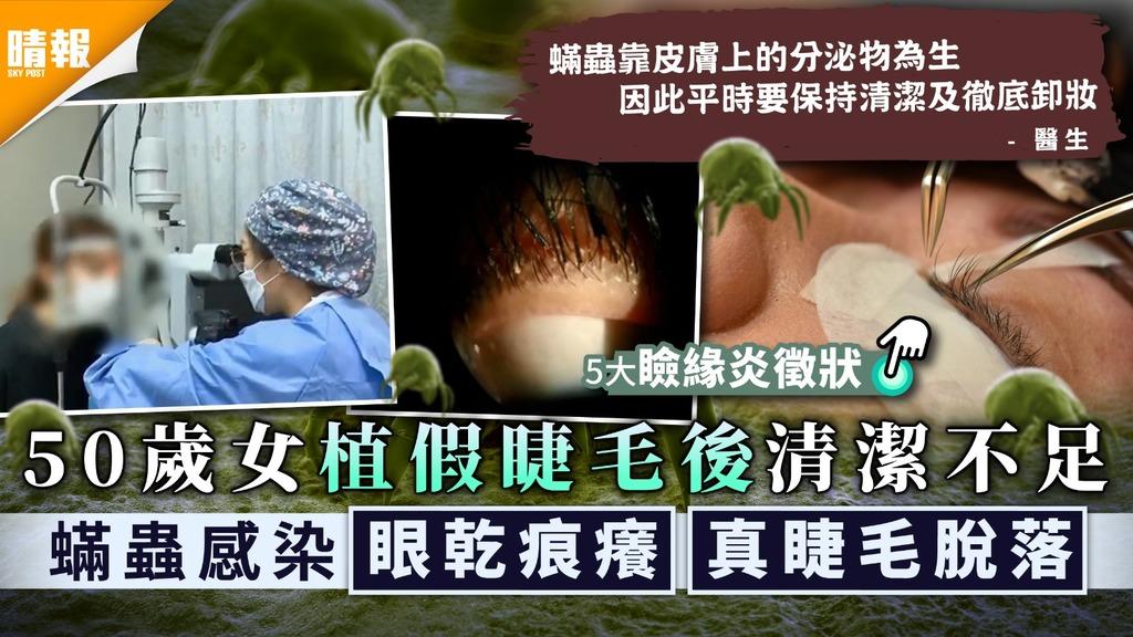 眼部美容 50歲女植假睫毛後清潔不足 蟎蟲感染眼乾痕癢真睫毛脫落 附5大瞼緣炎徵狀