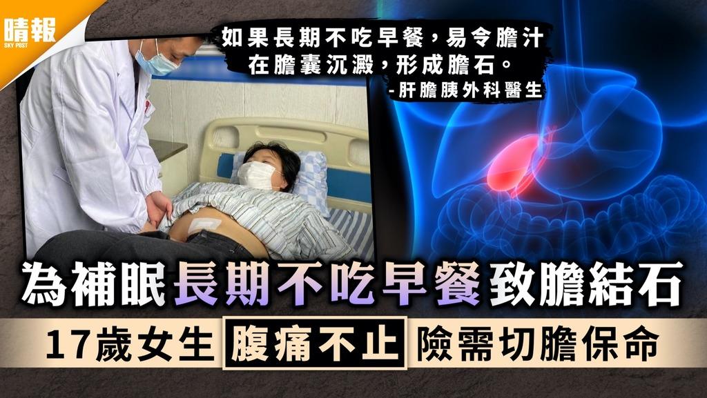 不良習慣|為補眠長期不吃早餐致膽結石 17歲女生腹痛不止險需切膽保命