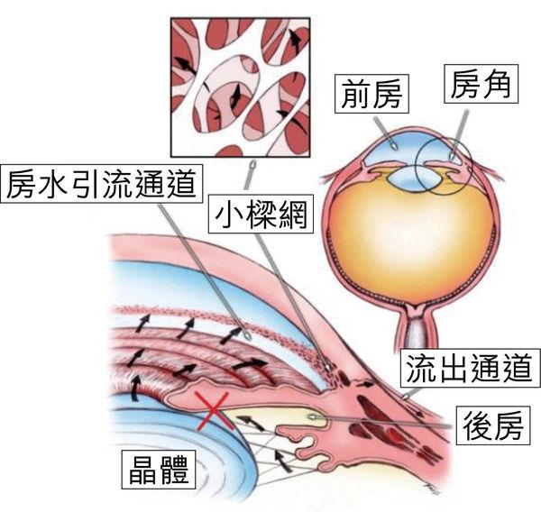 激光可用於青光眼白內障