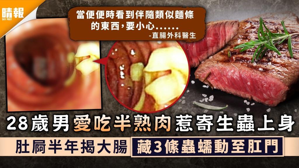 病從口入|28歲男愛吃半熟肉惹寄生蟲上身 肚屙半年揭大腸藏3絛蟲蠕動至肛門