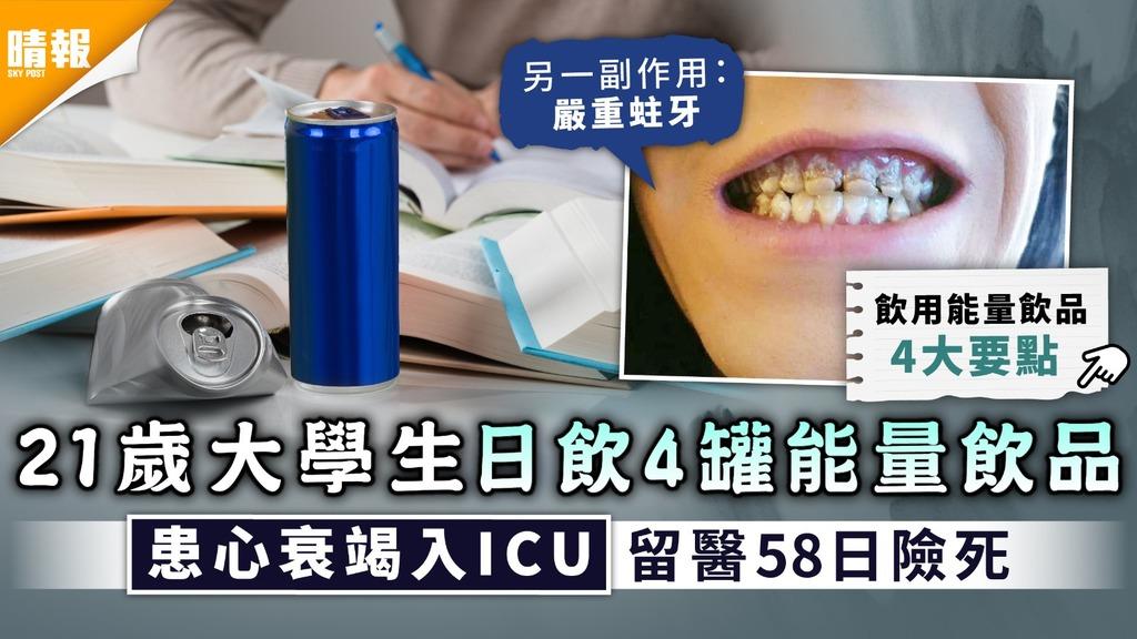 食用安全 21歲大學生日飲4罐能量飲品 患心衰竭入ICU留院58日險死