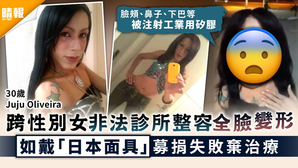 整容失敗|跨性別女非法診所整容全臉變形 如戴「日本面具」募捐失敗棄治療