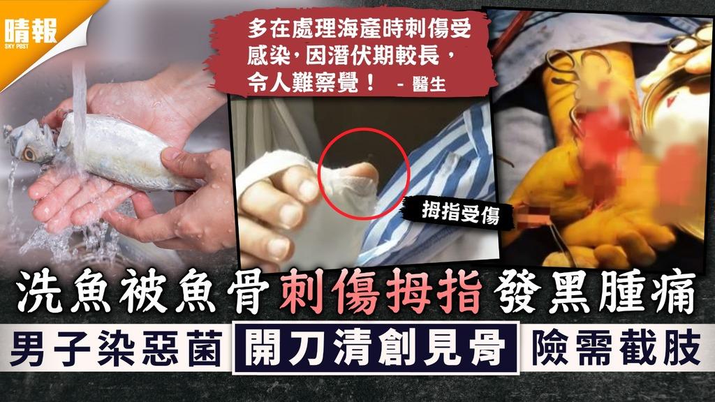 入廚安全|洗魚被魚骨刺傷拇指致發黑腫痛 男子染惡菌開刀清創見骨險需截肢