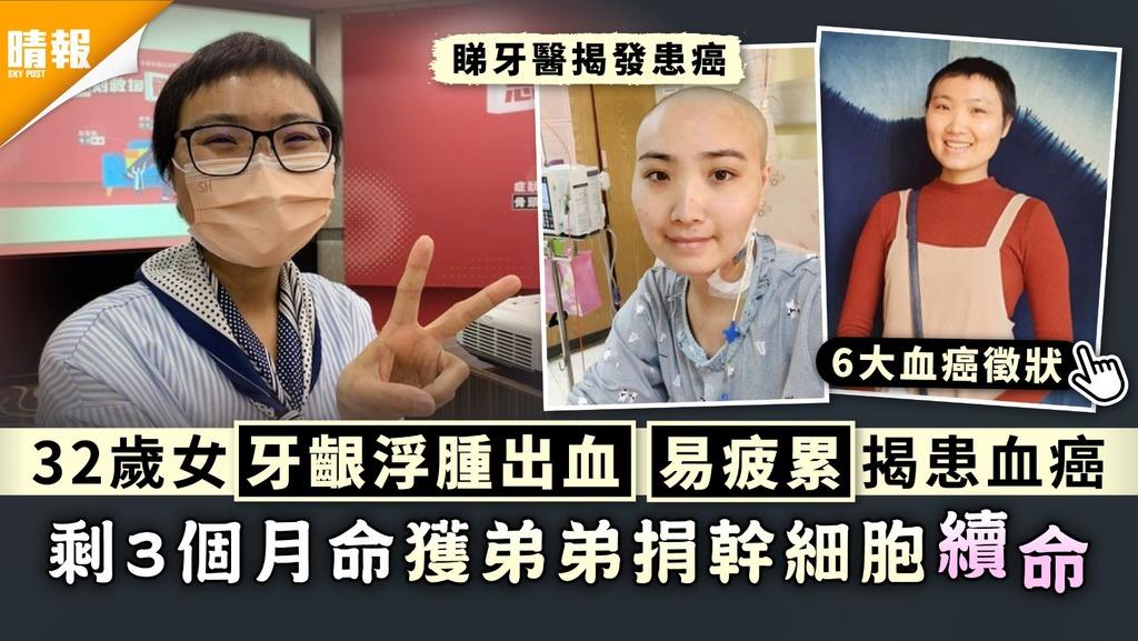 白血病|32歲女牙齦浮腫出血易疲累揭患血癌 剩3個月命獲弟弟捐幹細胞續命|附血癌6大徵狀