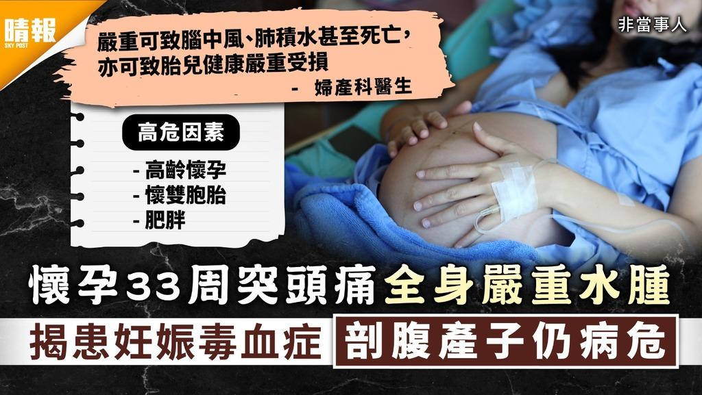 致命孕婦病|懷孕33周突頭痛全身嚴重水腫 揭患妊娠毒血症剖腹產子仍命危|7大高危因素