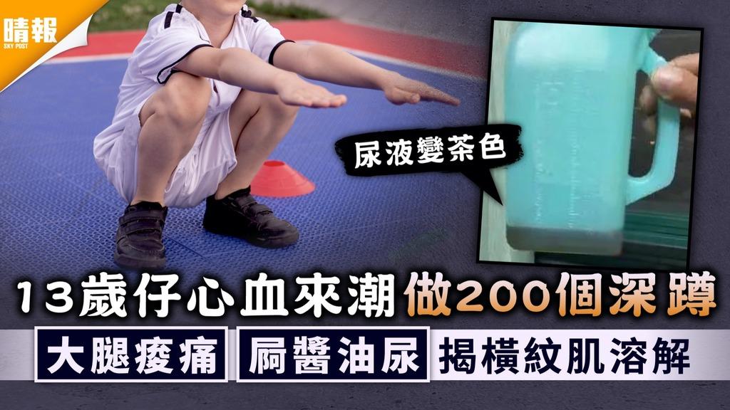 過量運動|13歲仔心血來潮做200個深蹲 大腿痠痛屙醬油尿揭患橫紋肌溶解症