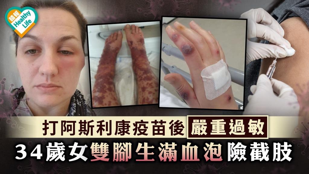 新冠疫苗 打阿斯利康疫苗後嚴重過敏 34歲女雙腳生滿血泡險截肢