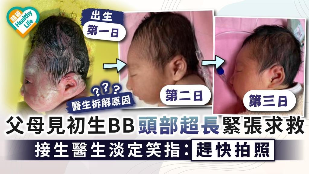 嬰兒產瘤|父母見初生BB頭部超長緊張求救 接生醫生淡定笑指:趕快拍照