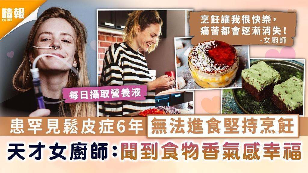 罕見病|患罕見鬆皮症6年無法進食堅持烹飪 天才女廚師:聞到食物香氣感幸福