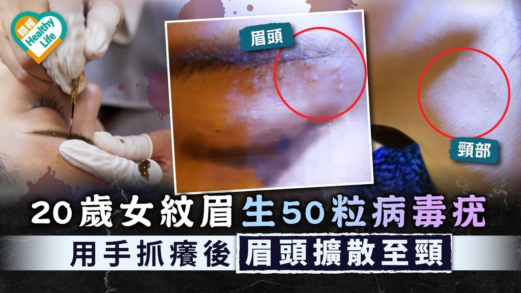 紋眉危機 20歲女紋眉生50粒病毒疣 用手抓癢後眉頭擴散至頸