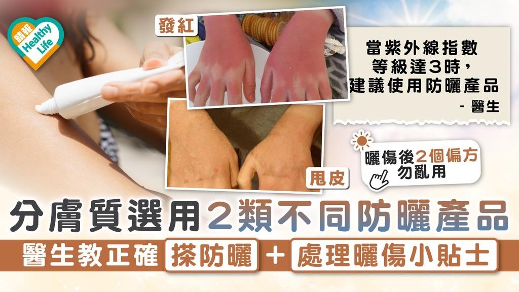 夏日防曬|分膚質選用2類不同防曬產品 醫生教正確搽防曬+處理曬傷小貼士