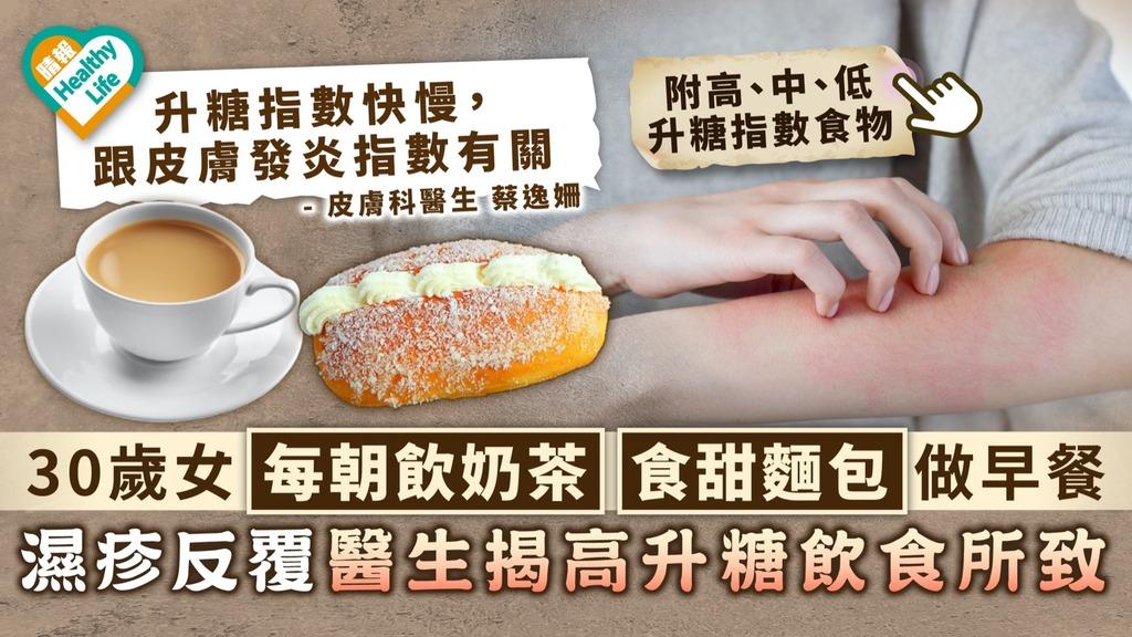 濕疹問題 30歲女每朝飲奶茶食甜麵包做早餐 濕疹反覆醫生揭高升糖飲食所致 附高中低升糖指數食物