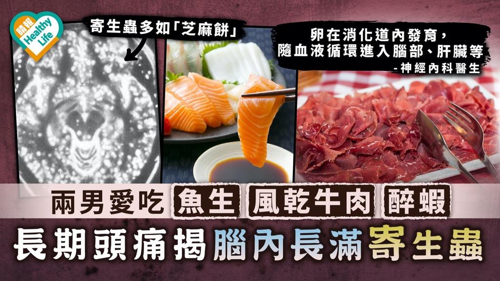 食用安全|兩男愛吃魚生、風乾牛肉、醉蝦 長期頭痛揭腦內長滿寄生蟲