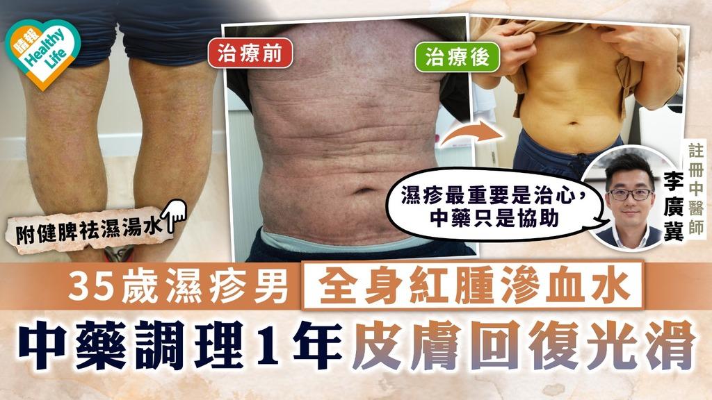 中醫治濕疹|35歲濕疹男全身紅腫滲血水 中藥調理1年皮膚回復光滑【附湯水建議】