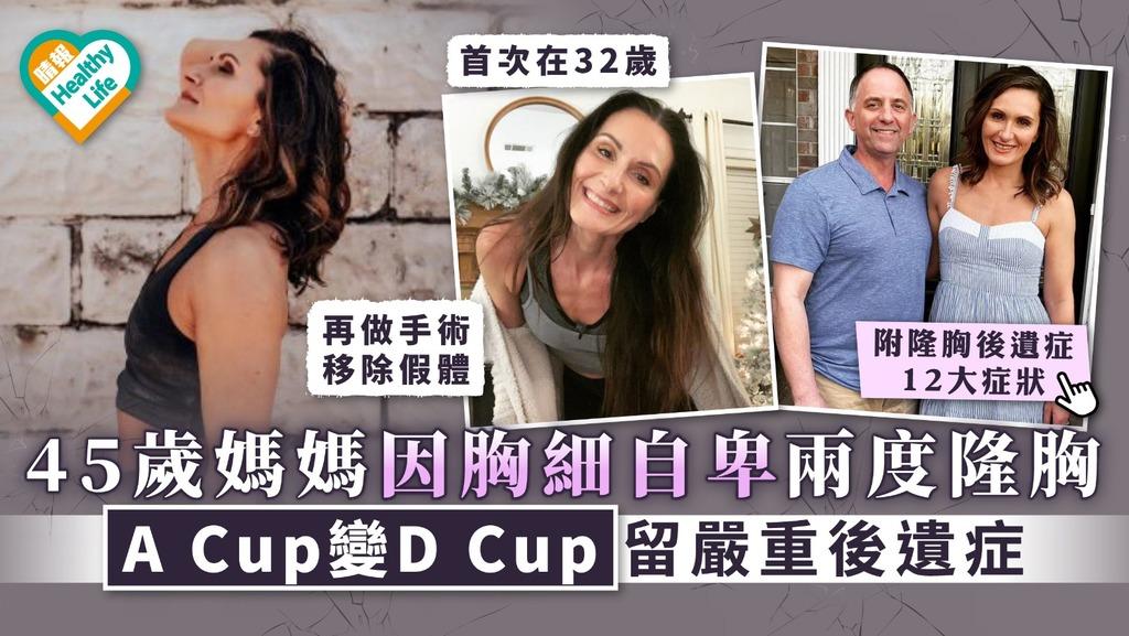 隆胸後遺症|45歲媽媽因胸細自卑兩度隆胸 A Cup變D Cup留嚴重後遺症