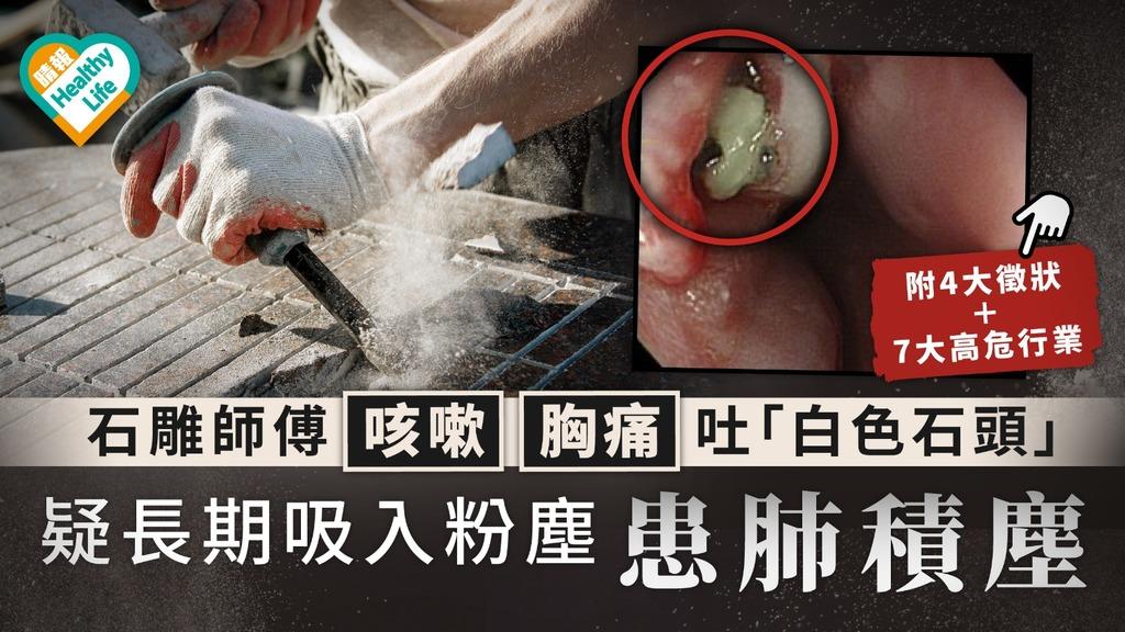 肺積塵|石雕師傅咳嗽胸痛吐「白色石頭」 疑長期吸入粉塵患肺積塵|附4大徵狀+7大高危行業