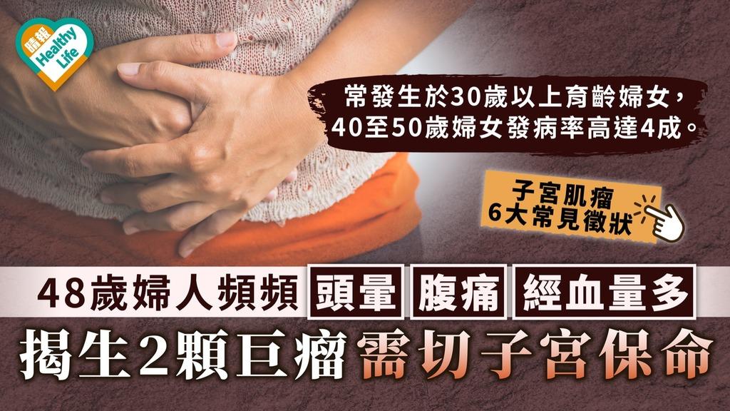 子宮肌瘤 48歲婦人頻頻頭暈腹痛經血量多 揭生2顆巨瘤需切子宮保命【附子宮肌瘤常見徵狀】
