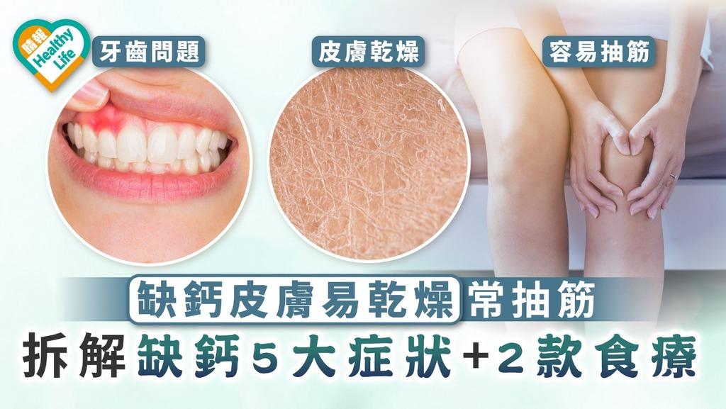骨質疏鬆|缺鈣皮膚易乾燥常抽筋 拆解缺鈣5大症狀+推介2款食療