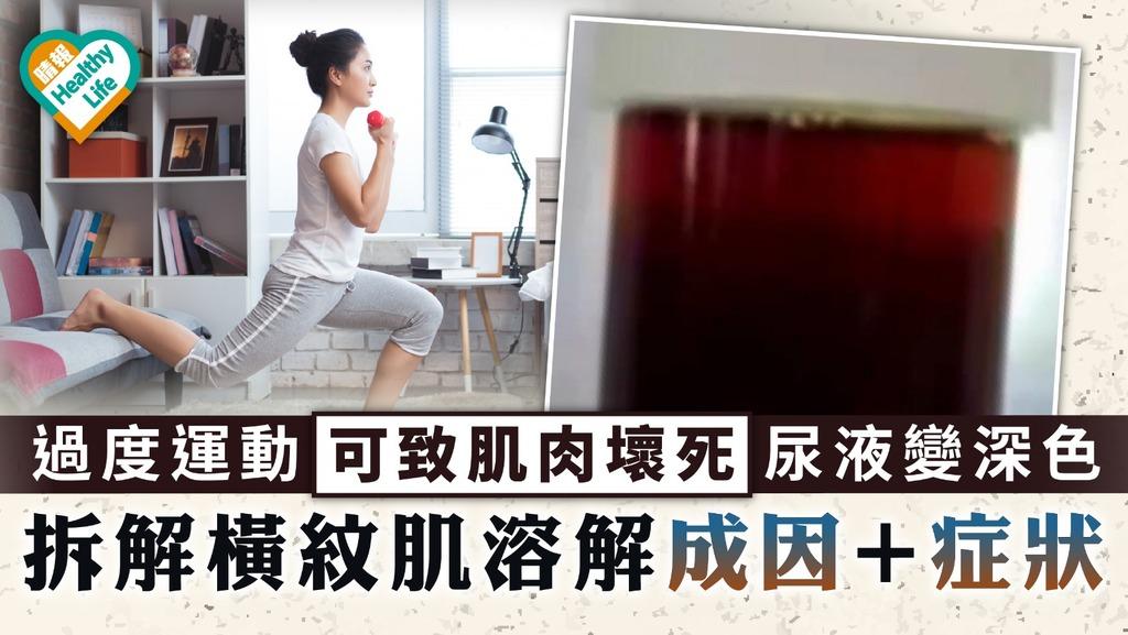 橫紋肌溶解症|過度運動可致肌肉壞死尿液變深色 拆解橫紋肌溶解成因+症狀