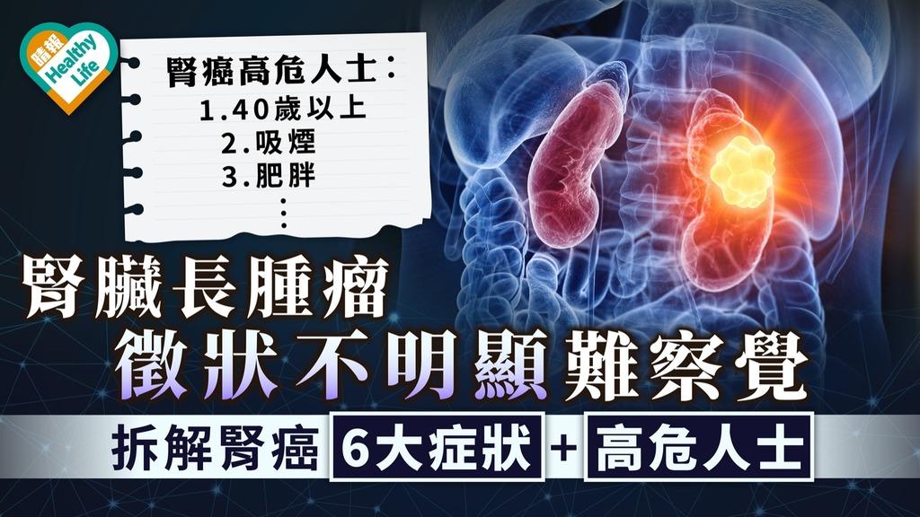癌症殺手|腎臟長腫瘤徵狀不明顯難察覺 拆解腎癌6大症狀+高危人士