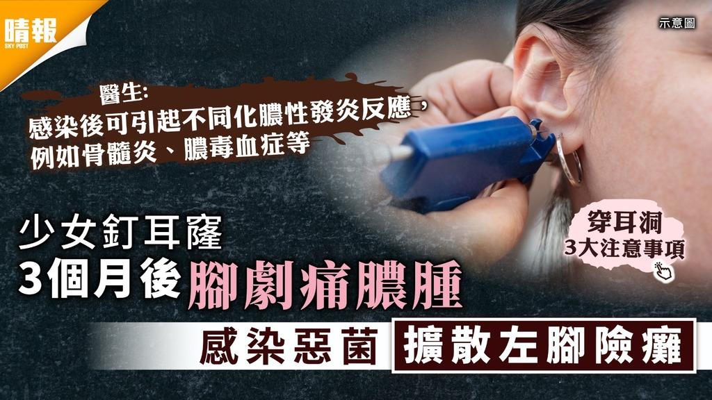 穿耳洞 少女釘耳窿3個月後腳劇痛膿腫 感染惡菌擴散左腳險癱【附3大注意事項】