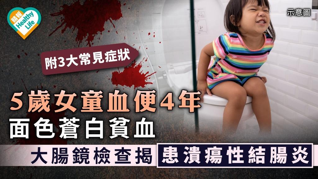 大便帶血|5歲女童血便4年面色蒼白貧血 大腸鏡檢查揭患潰瘍性結腸炎