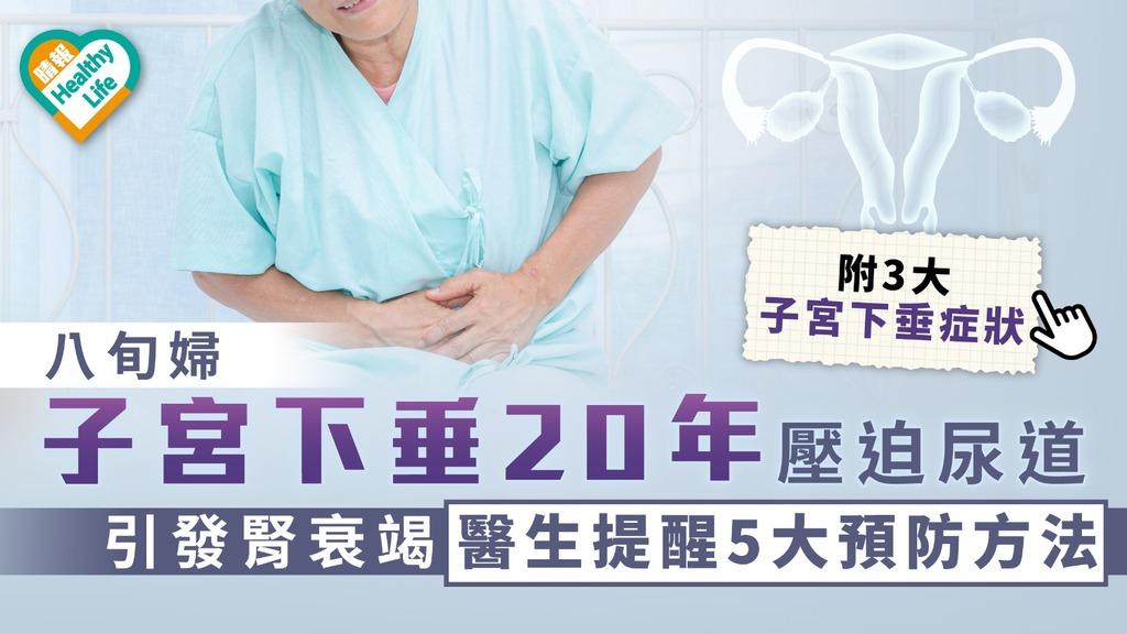 產後保養|八旬婦子宮下垂20年壓迫尿道引發腎衰竭 醫生提醒5大預防方法