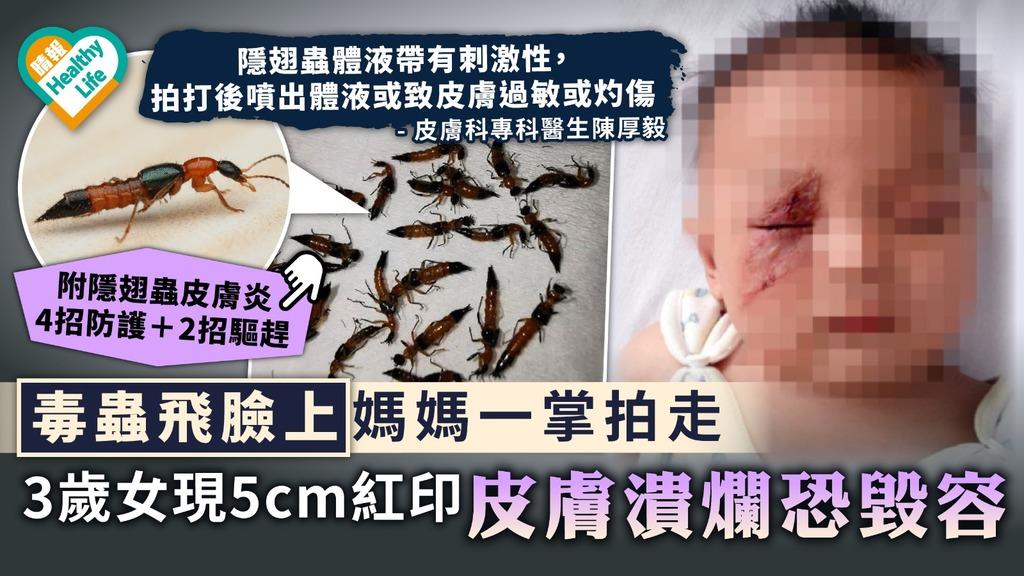 隱翅蟲|毒蟲飛臉上媽媽一掌拍走 3歲女現5cm紅印皮膚潰爛恐毀容