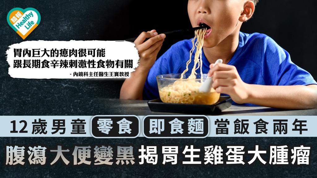 不良習慣 12歲男童零食即食麵當飯食兩年 腹瀉大便變黑揭胃生雞蛋大腫瘤