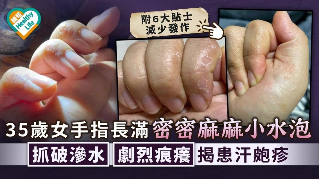 皮膚濕疹|35歲女手指長滿密密麻麻小水泡 抓破滲水劇烈痕癢揭患汗皰疹