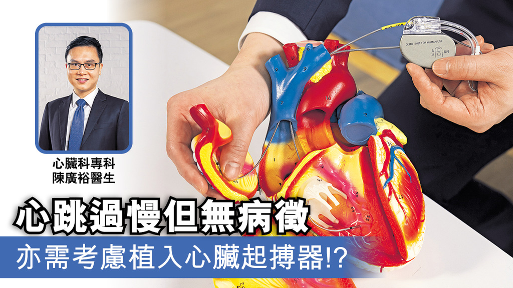 心跳過慢但無病徵 亦需考慮植入心臟起搏器!?