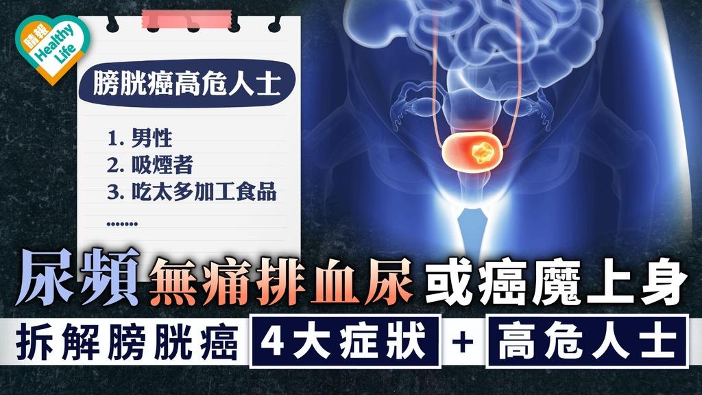 膀胱癌|尿頻無痛排血尿或癌魔上身 拆解膀胱癌4大症狀+高危人士