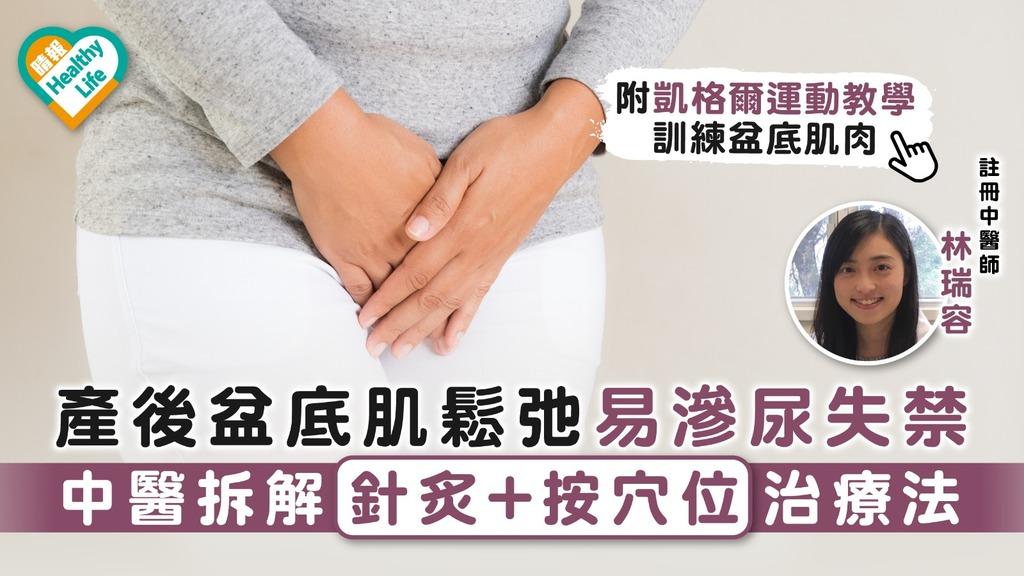 產後調理 產後盆底肌鬆弛易滲尿失禁 中醫拆解針炙+按穴位治療法