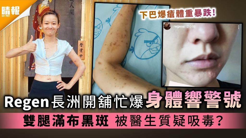 張惠雅Regen長洲開鋪忙爆身體響警號 雙腿滿布黑斑 被醫生質疑吸毒?