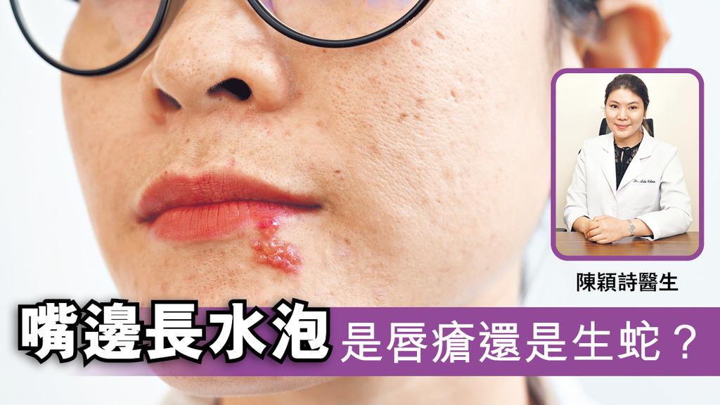嘴邊長水泡是唇瘡還是生蛇?
