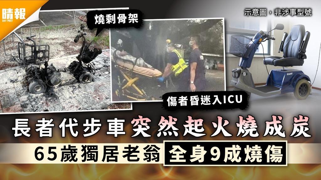 代步車起火|長者代步車突然起火燒成炭 65歲獨居老翁全身9成燒傷