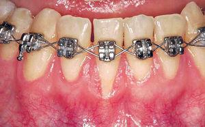 箍牙後無覆診 牙床收縮礙咬合