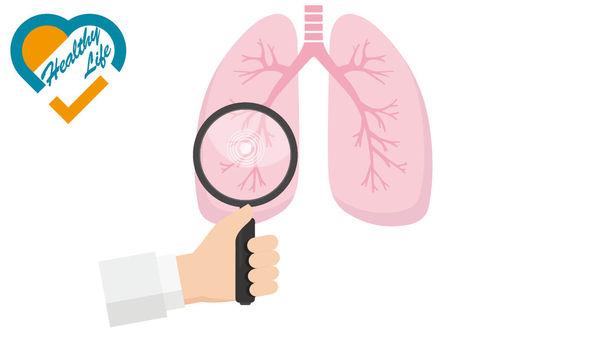 硬皮症可併發肺纖維化 2成人無定期檢查