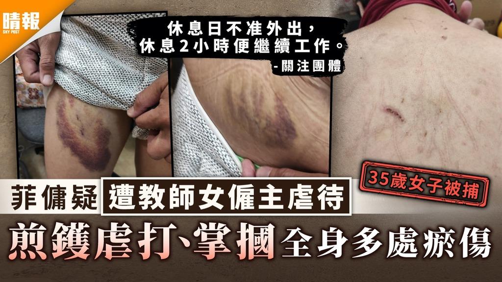 虐待外傭|菲傭疑遭教師女僱主虐待 煎鑊虐打、掌摑全身多處瘀傷