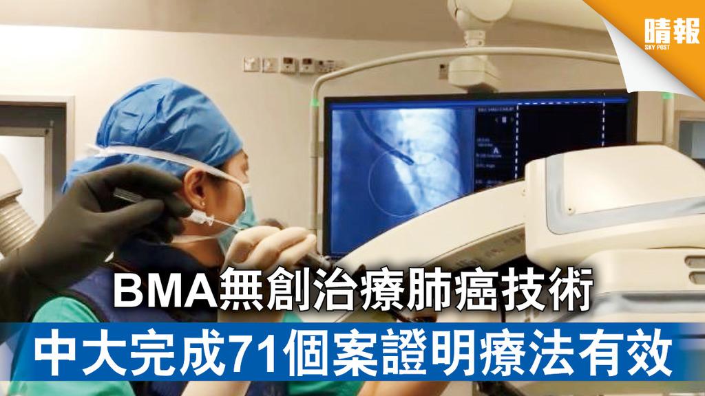 癌症治療 BMA無創治療肺癌技術 中大完成71個案證明療法有效