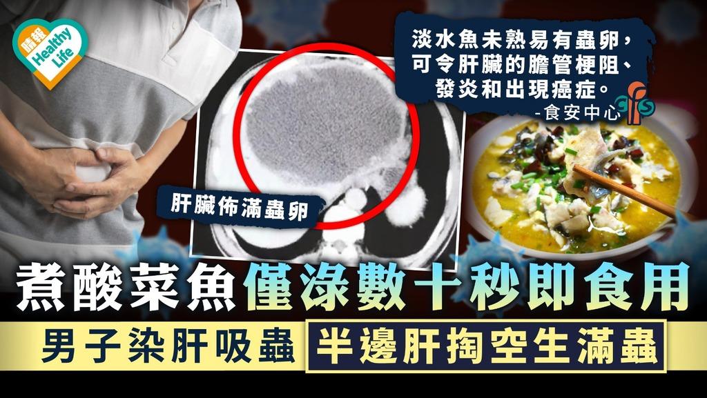 食用安全 煮酸菜魚僅淥數十秒即食用 男子染肝吸蟲半邊肝掏空生滿蟲