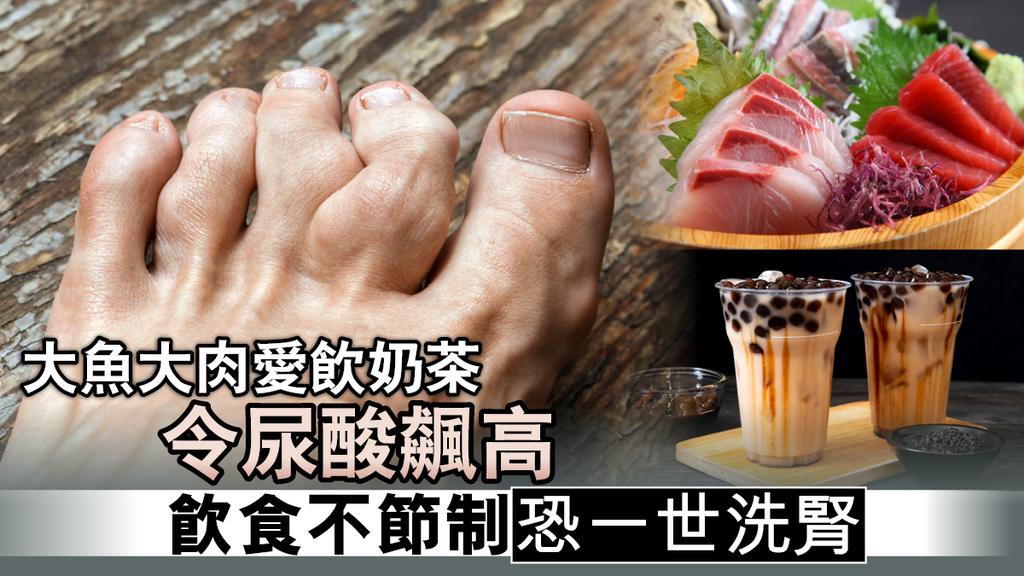 大魚大肉愛飲奶茶令尿酸飆高 飲食不節制恐一世洗腎