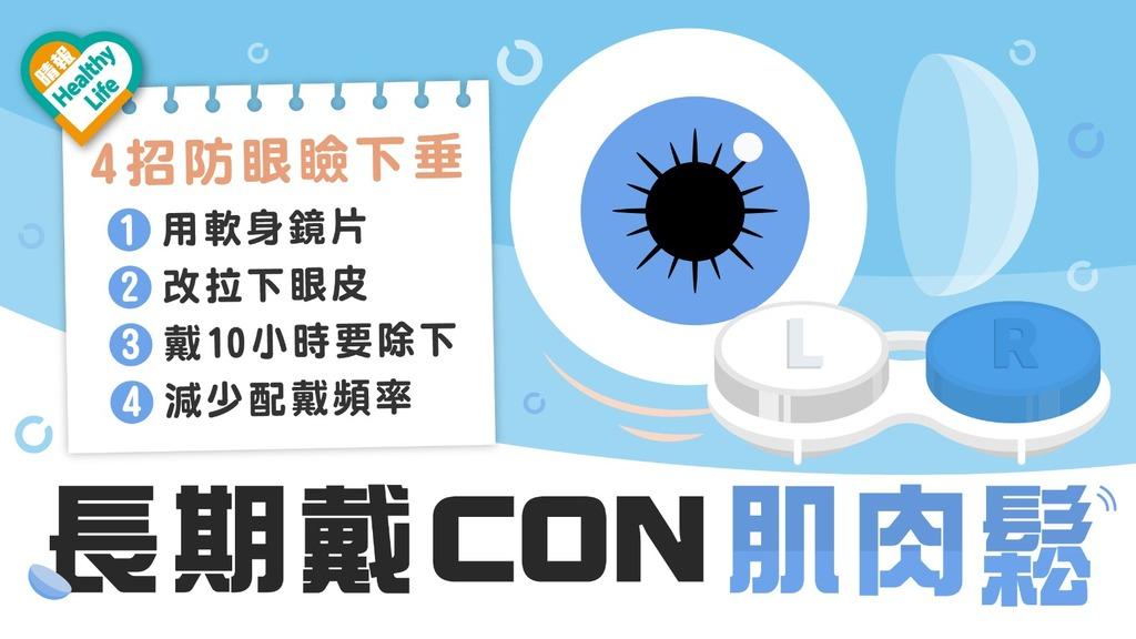 眼睛健康 │ 成日戴CON拉鬆肌肉眼瞼下垂影響外觀兼損視力(附戴CON貼士)