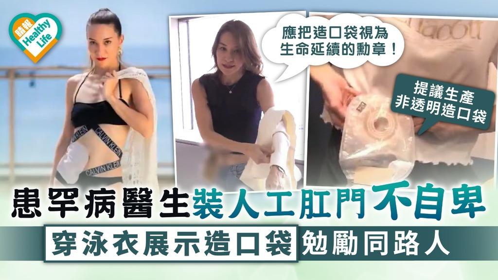 腸造口 患罕病醫生裝人工肛門不自卑 穿泳衣展示造口袋勉勵同路人