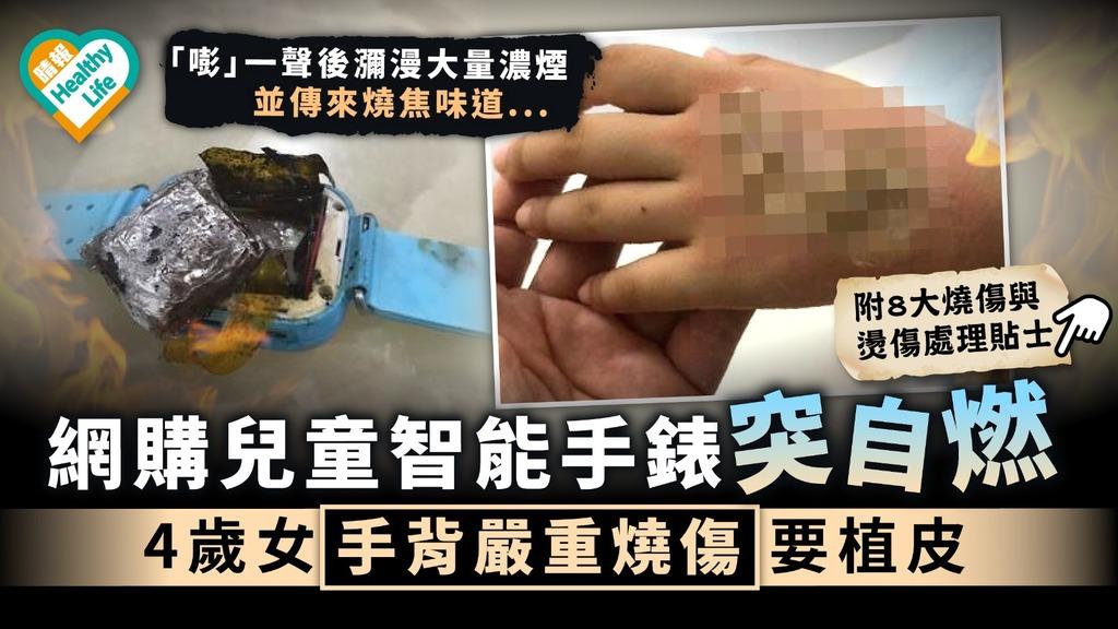 小孩燙傷 網購兒童智能手錶突自燃 4歲女手背嚴重燒傷要植皮 附8大燒傷與燙傷處理貼士
