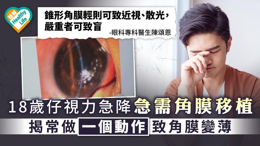 錐形角膜|18歲仔視力急降需角膜移植 揭常做一個動作致角膜變薄