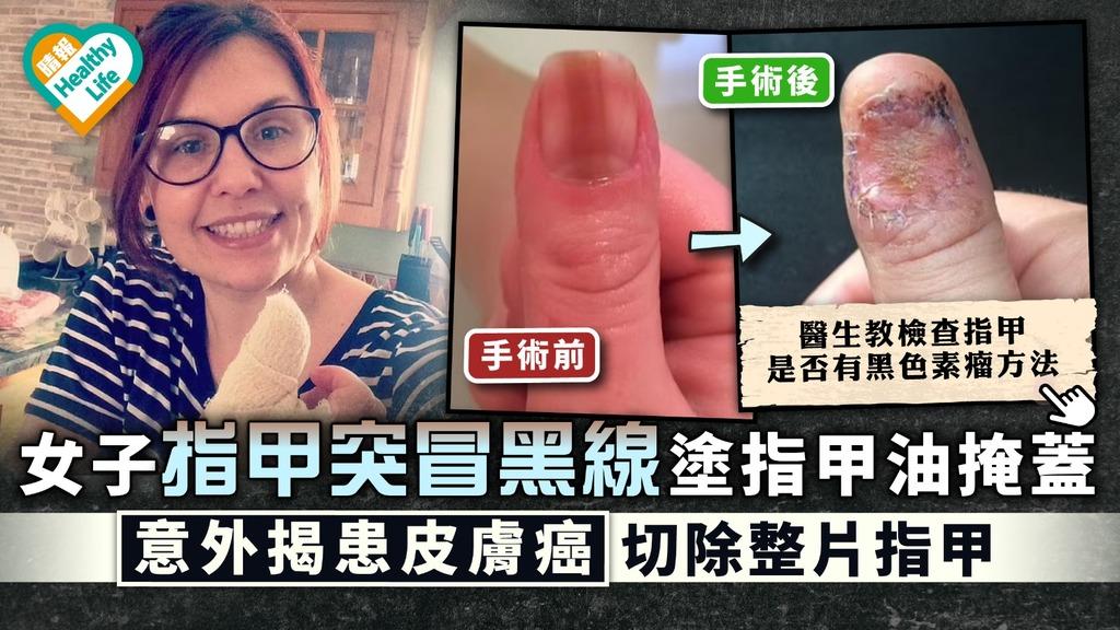 皮膚癌|女子指甲突冒黑線塗指甲油掩蓋 意外揭患皮膚癌切除整片指甲|附檢查指甲方法