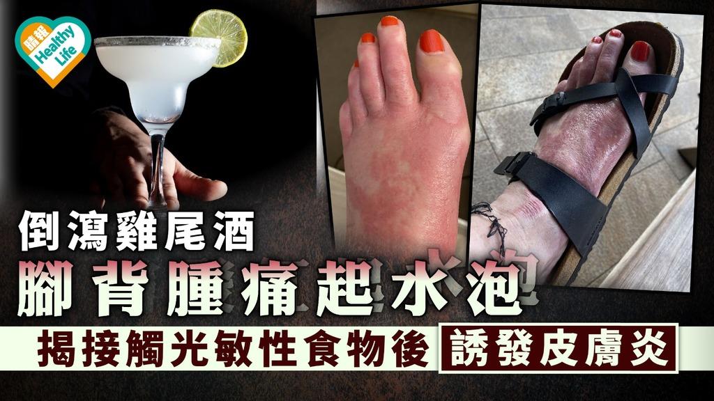 光敏感 倒瀉雞尾酒腳背腫痛起水泡 揭患光敏性皮膚炎1種成分致燒傷【留意11種光敏性食物】
