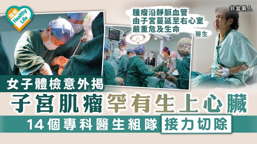 子宮肌瘤|女生體檢揭子宮肌瘤罕有生上心臟 14個專科醫生組隊接力切除