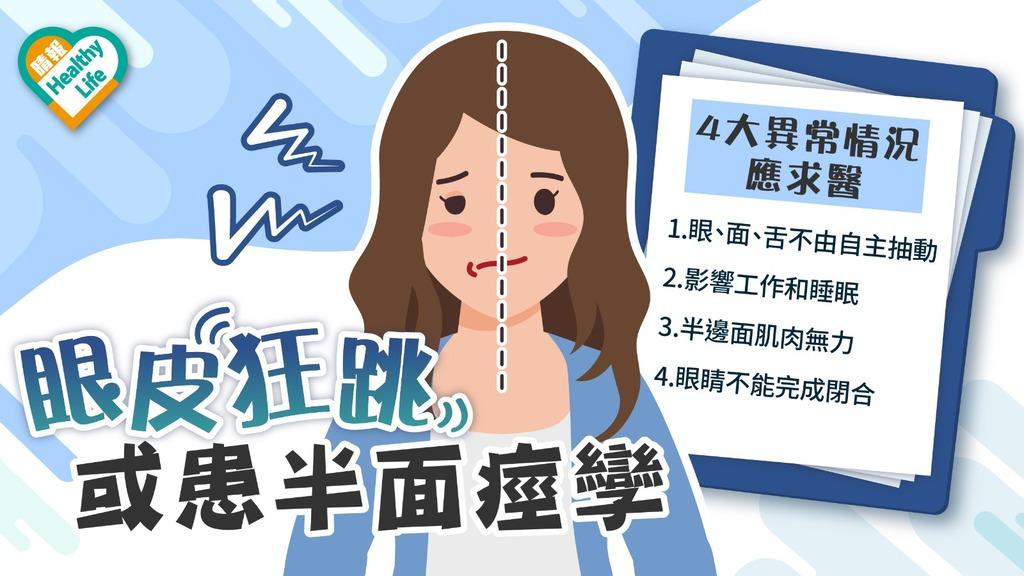 面癱與面痙孿 │ 面癱多因神經發炎 眼皮狂跳或患半面痙孿